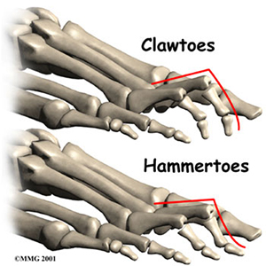 drapovite kladivkove prsty